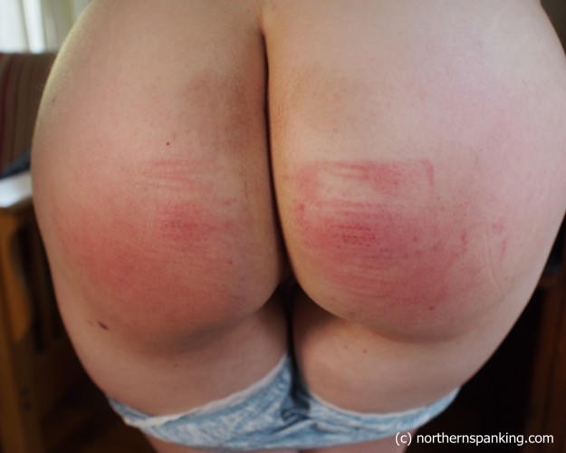 red welts on a sore spanked butt