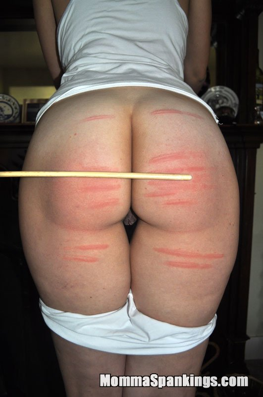 severe cane welts